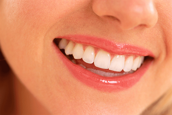 smile-showing-dental-bleaching-600x